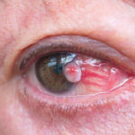 Tumors of the Eye Bellevue WA