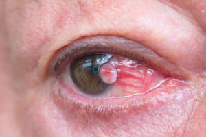 Tumors of the Eye | Kristin J. Tarbet MD | Bellevue WA